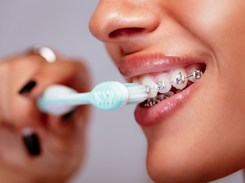 Woman brushing her teeth around the braces