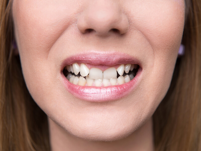 Woman with jaw alignment issues who needs braces.