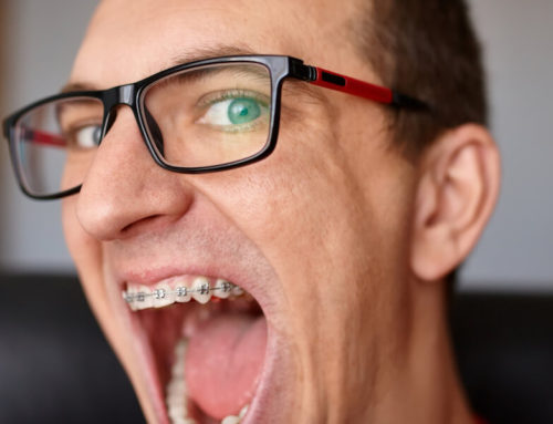 Today More Adults Are Investing in Braces, This is Why
